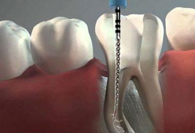 por qué hacer una ortodoncia